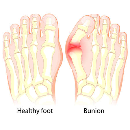 Healthy foot and foot with Bunion. Human anatomy. Skeleton