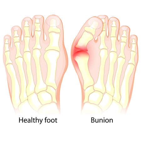 Bunion과 함께 건강한 발과 발. 인체 해부학. 해골