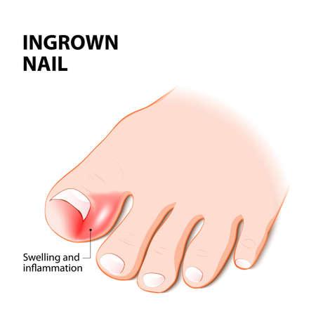 Ingrown nail. onychocryptosis. nail disease Illustration