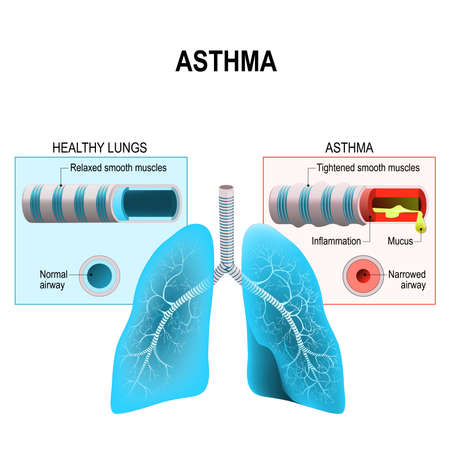 Asthma is a chronic inflammatory disease of the airways that is characterized by narrowing of the airways bronchospasm and coughing. Humans lungs and bronchi Illustration
