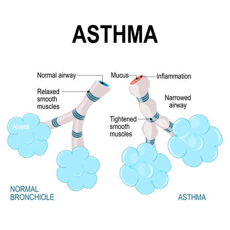 asthma. alveoli and bronchiole. normal and asthmatic. Part of Human lungs Иллюстрация