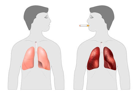 Smoker's and healthy lungs. before and after a lifetime of smoking. Silhouette of two man with lungs. Poster about the harm of smoking