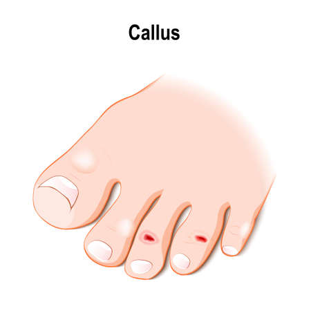 callus or callosity. humans foot with callus, wound, blisters and ulcer