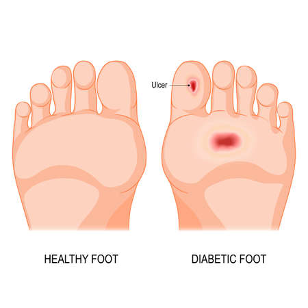 diabetic foot. Foot bottom pathology. Male or female sole. barefoot.