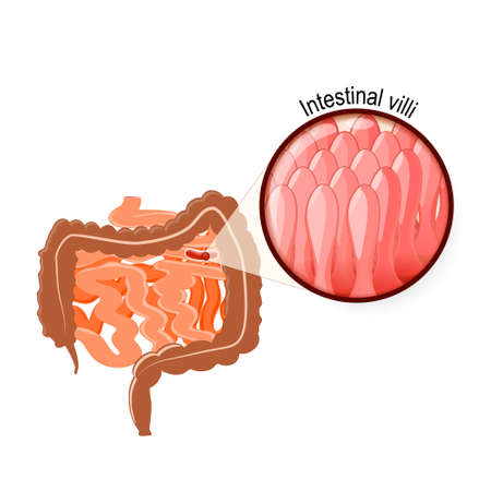 digestive system: Gastrointestinal tract. Intestinal Villi, Large and small intestine. Human anatomy