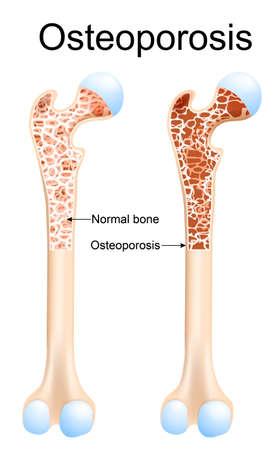 Osteoporosis: es una enfermedad de los huesos que aumenta el riesgo de fractura. Fémur y hueso sanos con osteoporosis