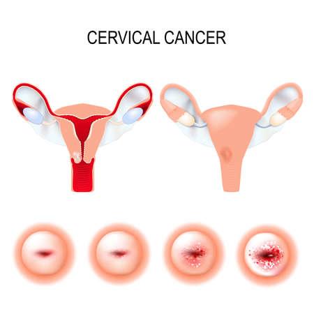 Cervicale kanker stadia. Carcinoom van Cervix. Kwaadaardig neoplasma afkomstig van cellen in de baarmoederhals. Vaginale bloeding. Stock Illustratie