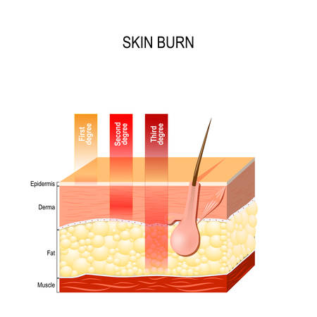 skin burn. Layers of the skin.  First, second and third degree skin burns
