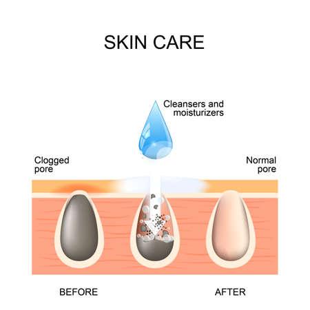 Protección de la piel. Poros obstruidos y normales. Antes y después de usar exfoliantes, limpiadores y humectantes Foto de archivo - 87517761