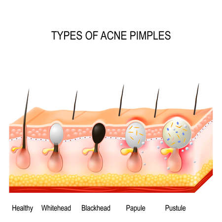 Types of acne pimples. Healthy skin, Whiteheads and Blackheads, Papules and Pustules