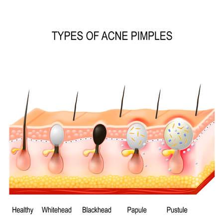 Vormen van acne puistjes. Een gezonde huid, Whiteheads en mee-eters, papules en Puisten