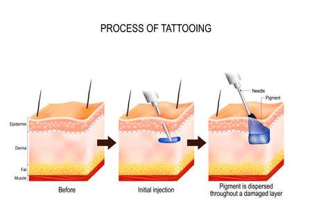 tattoo proces. Het tatoeëringproces veroorzaakt schade aan de epidermis en de dermis. Elke keer dat de naald penetreert, veroorzaakt deze een wond die het immuunsysteem van het lichaam alarmeert. Pigment wordt opgenomen door huidcellen en blijft voor altijd in suspensie in de dermis.