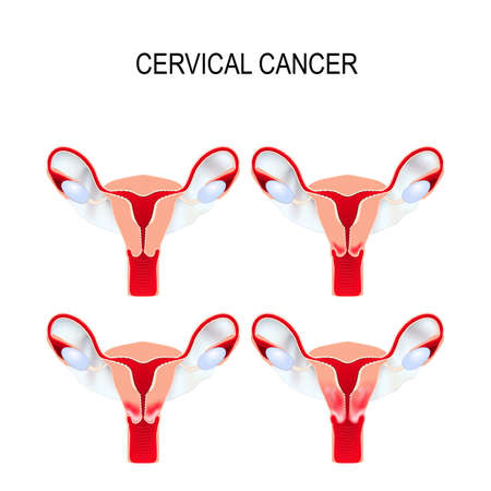 Cervical cancer staging.  Carcinoma of Cervix. Malignant neoplasm arising from cells in the cervix uteri.