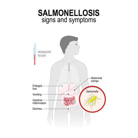 Salmonellosis. Signs and symptoms. Man silhouette with highlighted internal organs. Vector illustration for your design and medical use.