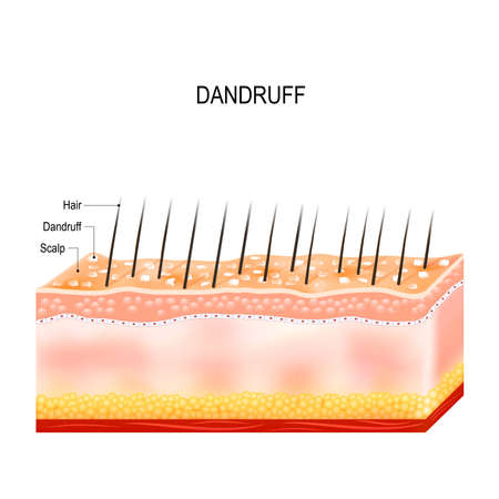 Dandruff. seborrheic dermatitis can occur due to dry skin, bacteria and fungus on the scalp. It causes formation of dry skin flakes on the scalp. Layers of the human skin Illustration