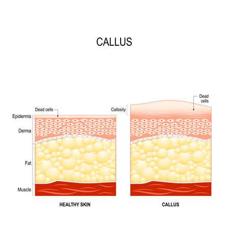 Callus illustration.