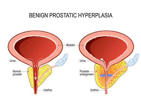 Benign prostatic hyperplasia (BPH). prostate enlargement. Diagram of a normal prostate and Prostatitis Ilustração