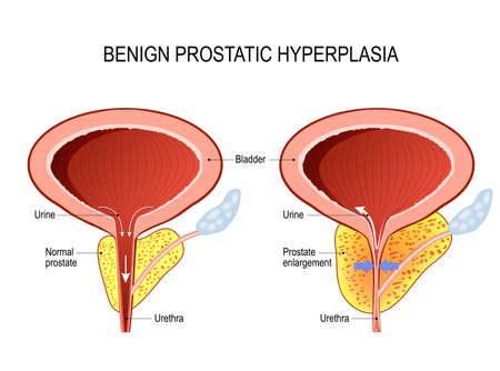 hipertrofia de prostata concepto