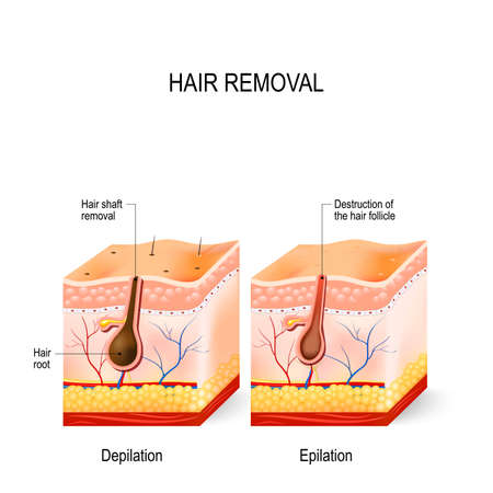 Hair removal. The difference between epilation and depilation. skincare