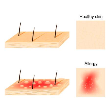 Allergie peau saine et réactions allergiques vue de dessus et de côté.