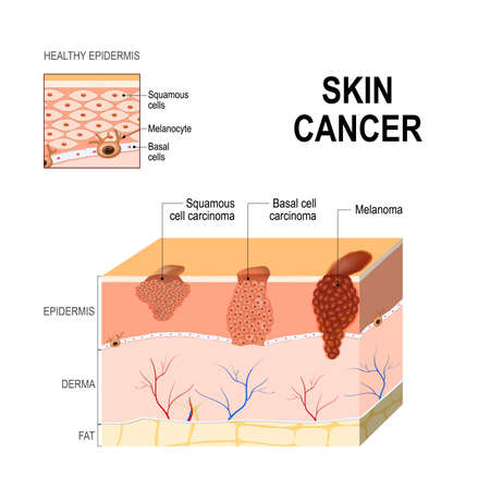 Squamous cell carcinoma skin cancer illustration.