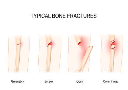 Typical bone fractures: Greenstick, Simple, Open, Comminuted. Vector scheme