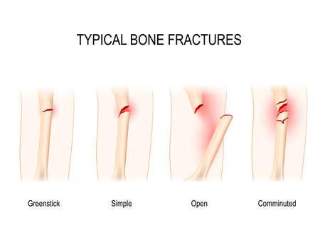 Typowe złamania kości: Greenstick, Simple, Open, Comminuted. Schemat wektorowy