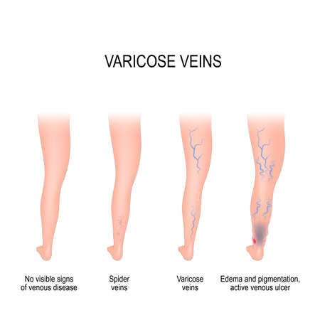 Stages of varicose: from no visible signs of venous disease to spider veins, edema, pigmentation and active venous ulcer. Normal and varicose veins. Vector diagram