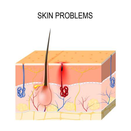 Problemas de la piel. Poros obstruidos. El sebo y las células muertas de la piel en el poro obstruido promueven el crecimiento de ciertas bacterias (Propionibacterium Acnes). Esto conduce al enrojecimiento y la inflamación asociados con las espinillas. Ilustración de vector