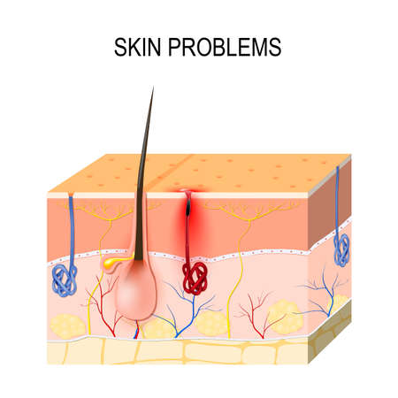 Skin problems. Clogged pores. Sebum and dead skin cells in the clogged pore promotes the growth of a certain bacteria (Propionibacterium Acnes). This leads to the redness and inflammation associated with pimples.