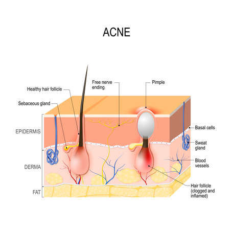 Acne vulgaris or pimple. healthy hair follicle and clogged pore.
