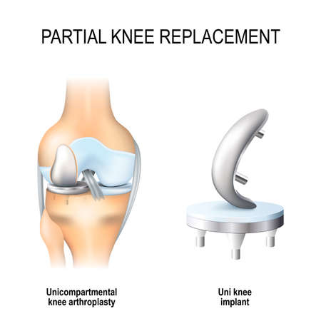 Partial knee replacement. Uni compartmental knee arthroplasty and uni knee implant concept in isolated background
