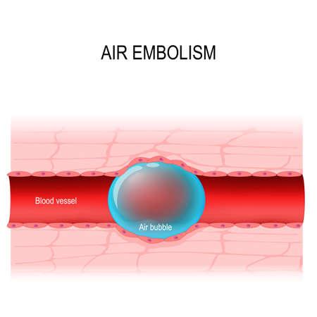air embolism. gas embolism is a blood vessel blockage