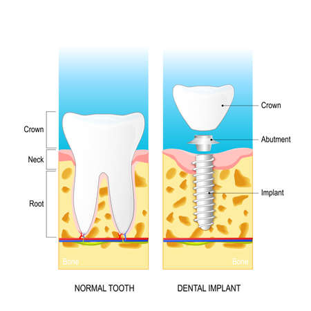Normal human tooth and prosthesis. Dental implant. Dental anatomy: root, neck, crown. Structure of dental implant: crown, abutment and implant. Vector diagram for medical use