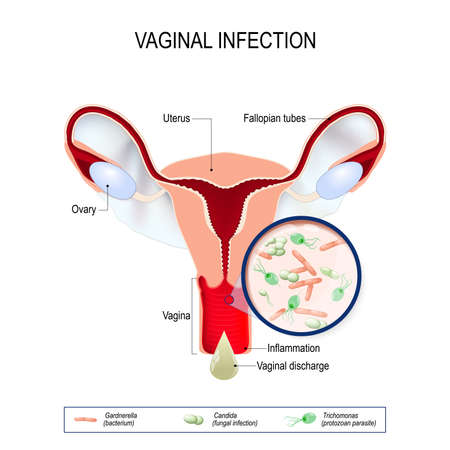 Vaginitis is an inflammation of the vagina. vaginal infection and causative agents of vulvovaginitis: gardnerella (bacterium), candida (fungal), trichomonas (protozoan parasite). Vaginal discharge. Stock Vector - 90420767