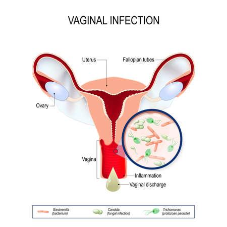 Vaginitis ist eine Entzündung der Vagina. vaginale Infektion und Erreger der Vulvovaginitis: Gardnerella (Bakterium), Candida (Pilz), Trichomonas (Protozoen Parasit). Vaginale Entladung.