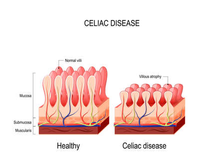 Coeliac disease. celiac disease. normal villi and villous atrophy. small bowel showing coeliac disease manifested by blunting of vill. Vector diagram for medical use