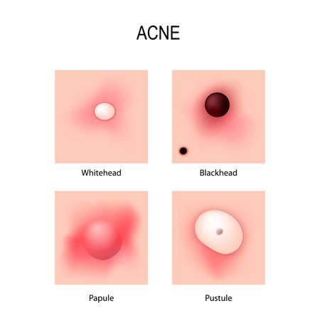 Acne vulgaris. stages of development. Types of pimples. schematic view of skin problems.