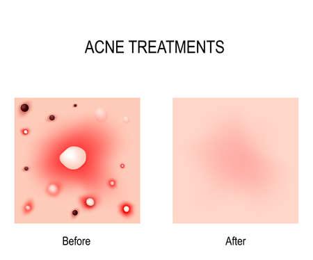 Acne behandeling concept illustratie.