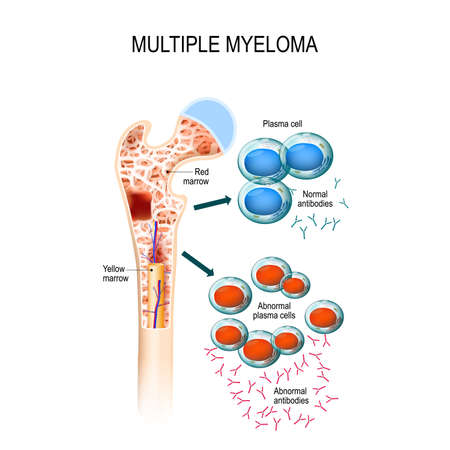 Multiple myeloma, cancer of the bone marrow concept illustration.