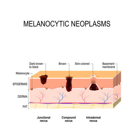 Melanocytic nevus. junctional, compound and intradermal nevus. difference between a birthmark, mole and nevus Stock Vector - 90748684