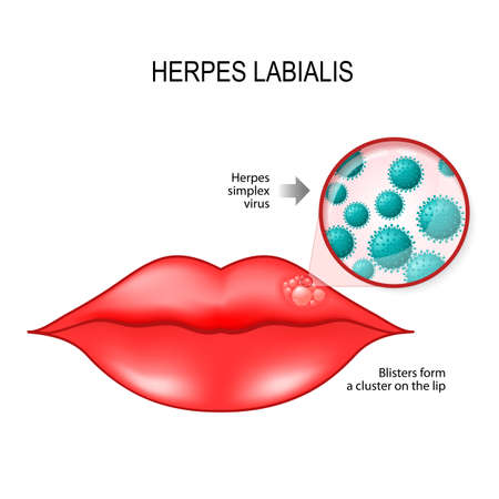 Herpes labialis (blisters) on the lip. cause is herpes simplex virus (under a magnifying glass). Vector diagram for medical use Illustration