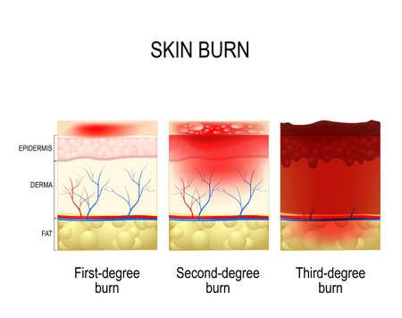 oparzenie skóry. Trzy stopnie oparzenia. rodzaj obrażeń skóry. krok oparzenia