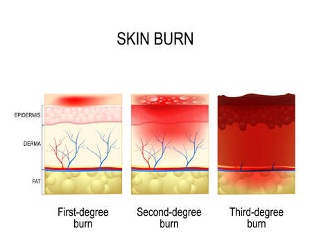 skin burn. Three degrees of burns. type of injury to skin. step of burn Stock fotó - 90848668