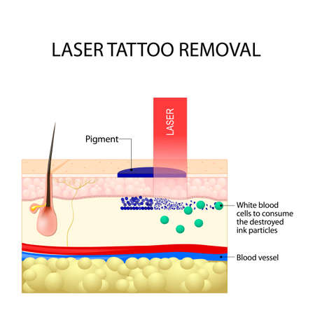 Laser tattoo removal. How Does Laser Tattoo Removal Work. Dark ink absorb light and break down. White blood cells to consume the destroyed ink particles and carry them to the liver. Фото со стока - 91015610