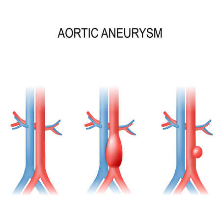 Types of abdominal aortic aneurysm. normal aorta, and enlarged vessels. Vector diagram.