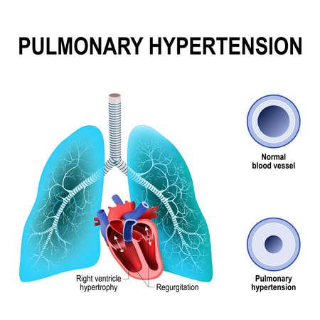 Pulmonale hypertensie is een verhoogde bloeddruk in de slagaders van de longen. Dwarsdoorsnede van de normale en vernauwing van bloedvaten. Mensenhart met hypertrofie van de rechterkamer en longregurgitatie