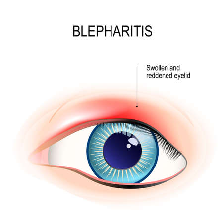 Eye of human. Blepharitis is a inflammation, and reddening of the eyelid. Human anatomy. Vector diagram for educational, and medical use.