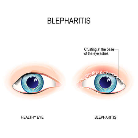 Eyes of human. Blepharitis is a inflammation of the eyelid. Crusting at the eyelid margins  due to excessive bacterial buildup along the lid margins. Human anatomy. Vector diagram for educational, and medical use.