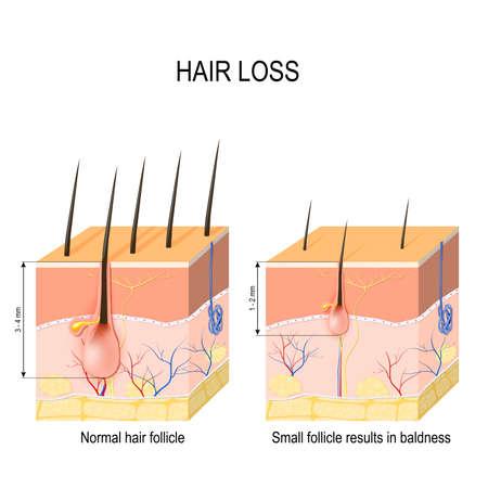 脱毛(はげ)。脱毛症の正常な毛包と皮膚。人間の皮膚。ベクトルイラスト